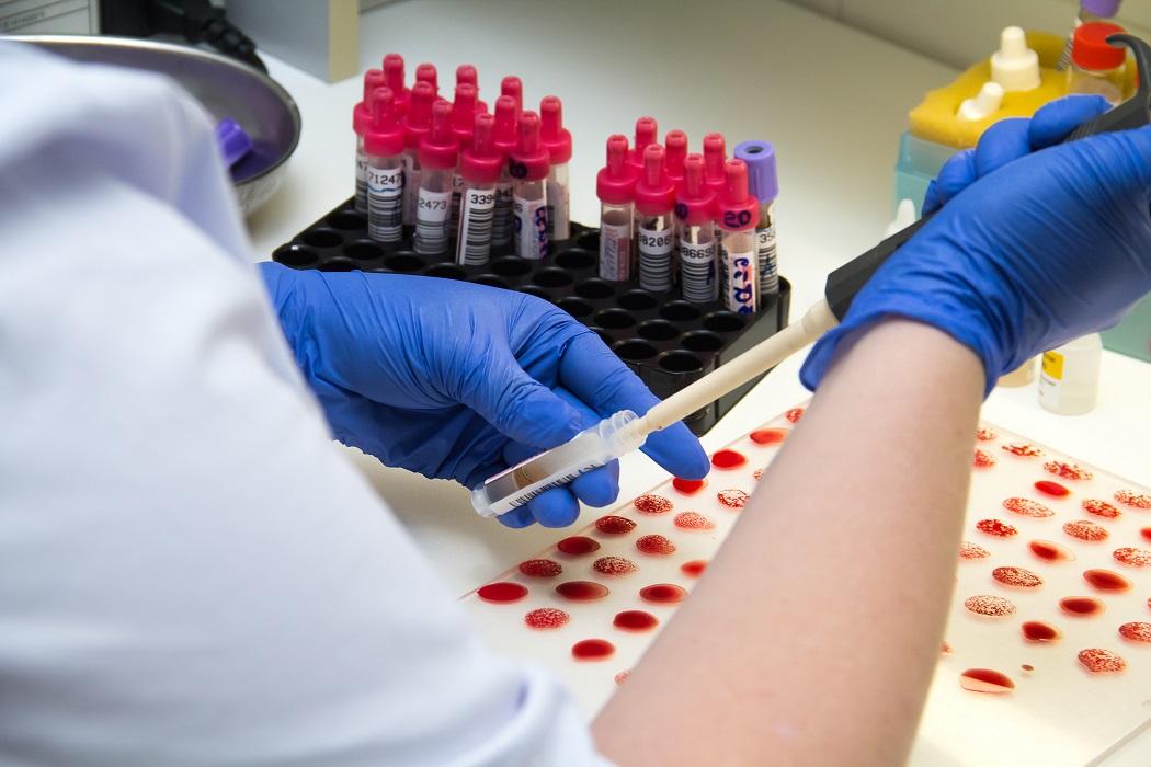 больница лаборатория коронавирус тест исследование кровь анализ