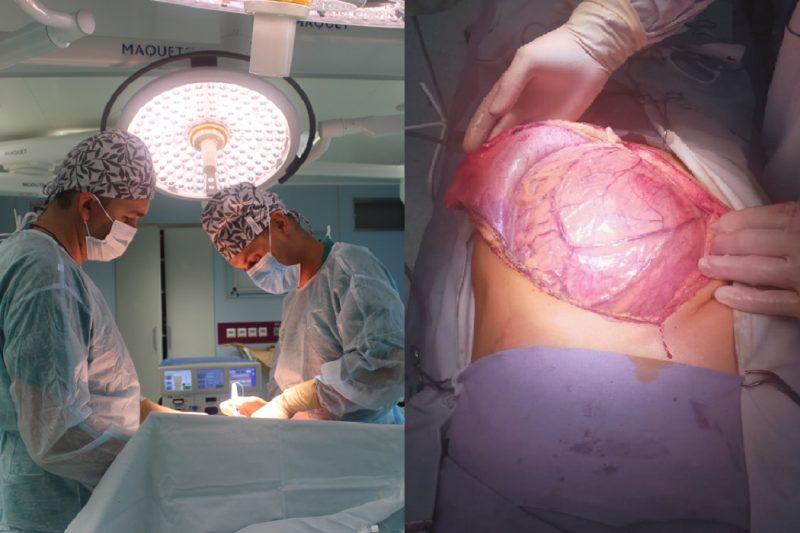 Тюменские врачи удалили пациенту гигантскую опухоль с почкой 1