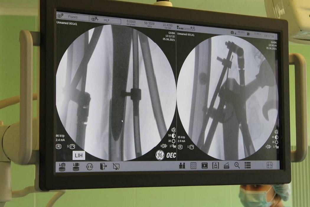 Оперция + хирургия + монтитор + операционная + перелом + коленный сустав + кость + врачи
